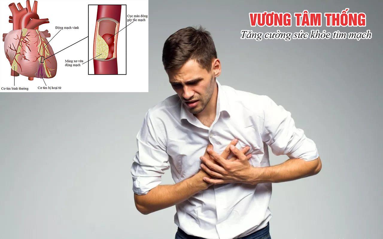 Tình trạng thiếu máu cơ tim ở người trẻ đang ở mức báo động